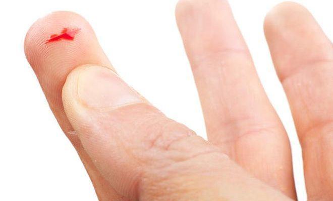Мелкий порез на указательном пальце